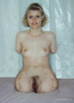 Nude pictures of women with no arms or legs